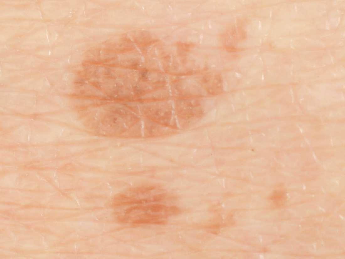 Melasma: Causes, symptoms, pictures, treatment