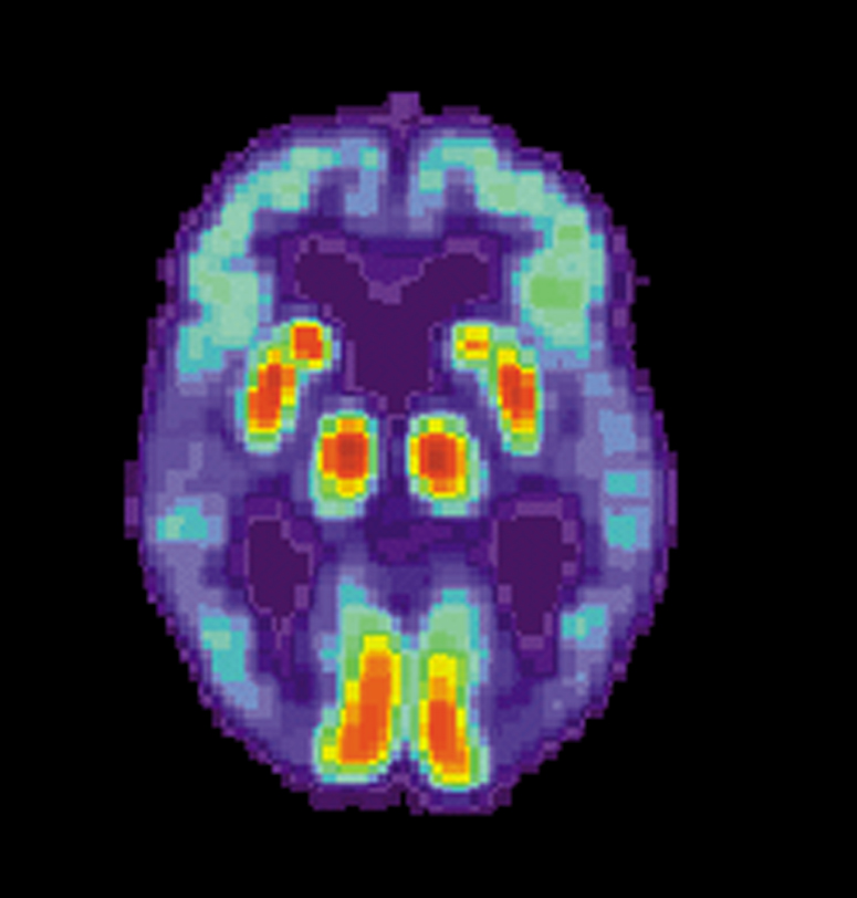 HIV drugs may help Alzheimer's, says study proposing an undiscovered root cause