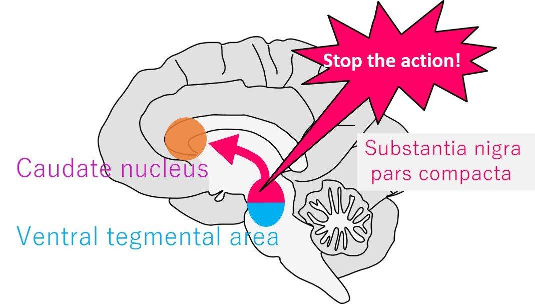 Monkey gaze study shows dopamine's role in response inhibition