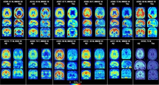 Promising diagnostic tool for Alzheimer's disease