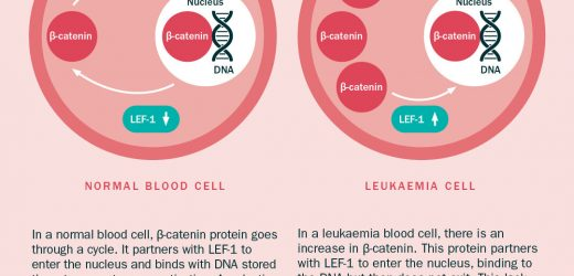 Research reveals mechanism for leukaemia cell growth, prompting new treatment hopes