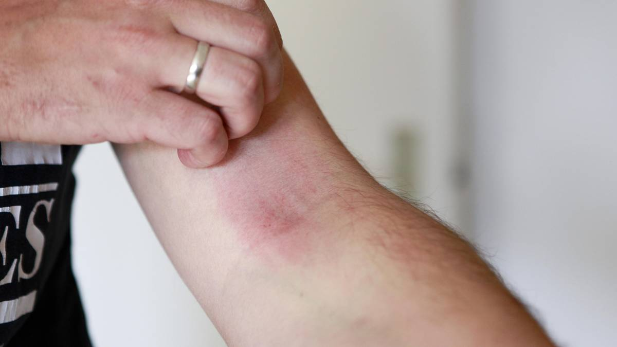 Eczema: Helps in the future, a pill against the excruciating itching?