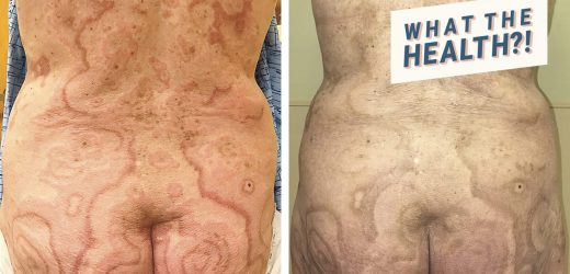 This Woman's Crazy Rash Turned Out to Be a Sign of Anal Cancer