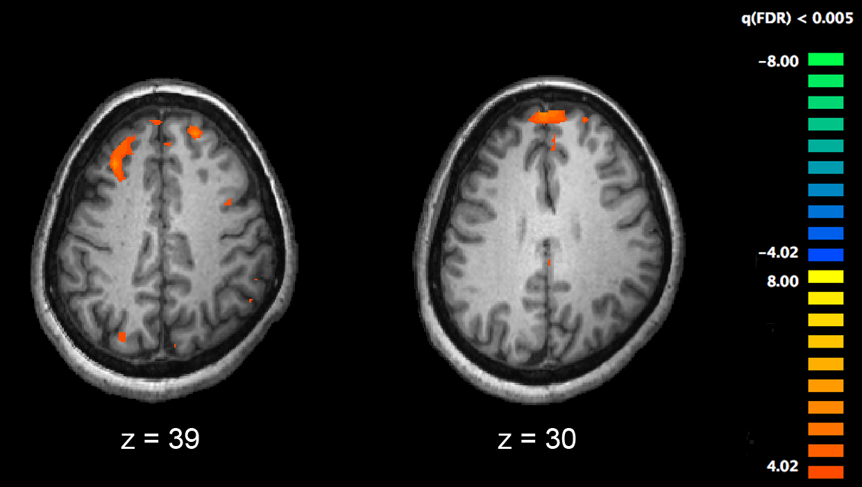 Study shows the brains of people with schizophrenia-related disorders aren't all the same
