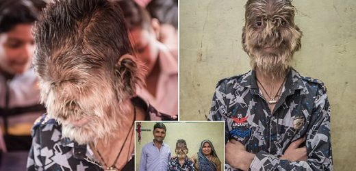 The real-life werewolf: 13-year-old boy's face is covered in HAIR