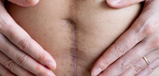C-section wound infection: Signs and prevention