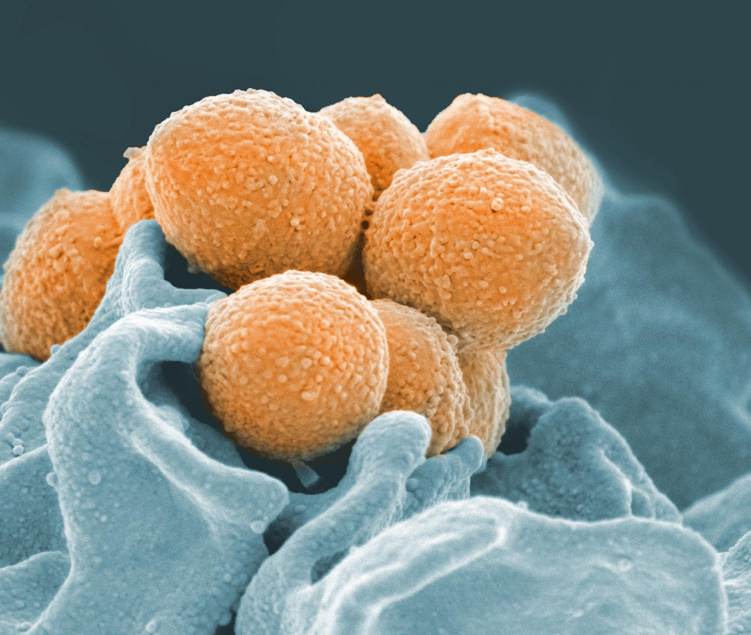 Strep A bacteria kill a half-million people a year. Why don't we have a vaccine?