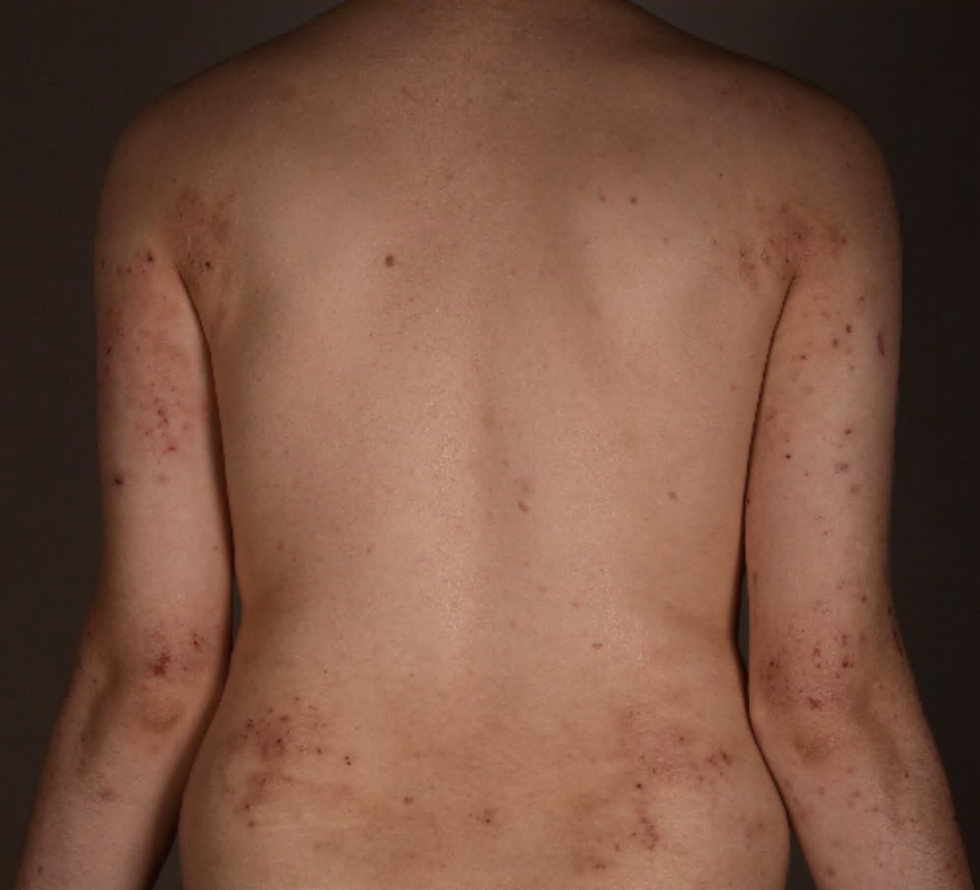 New potential approach to treat atopic dermatitis