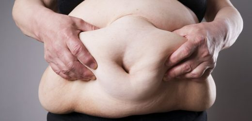 New treatment of Obesity – millions of people could benefit