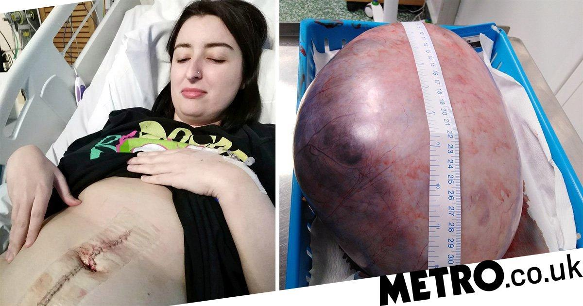 Woman who 'looked pregnant' with tumour the size of a watermelon has it removed