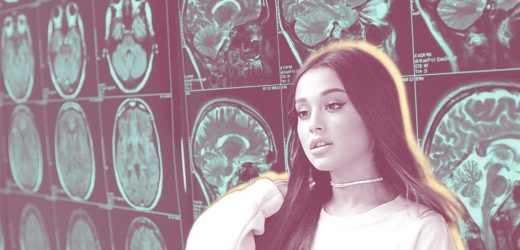 Ariana Grande Just Shared Her 'Terrifying' Brain Scan on Social Media