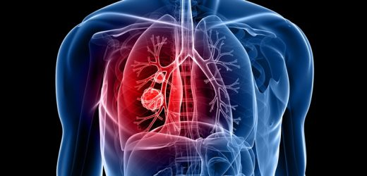 Inhalable chemotherapy may help treat lung cancer