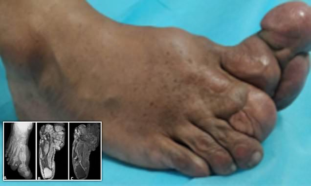 Doctors release photos of a man's foot  born with enlarged toes
