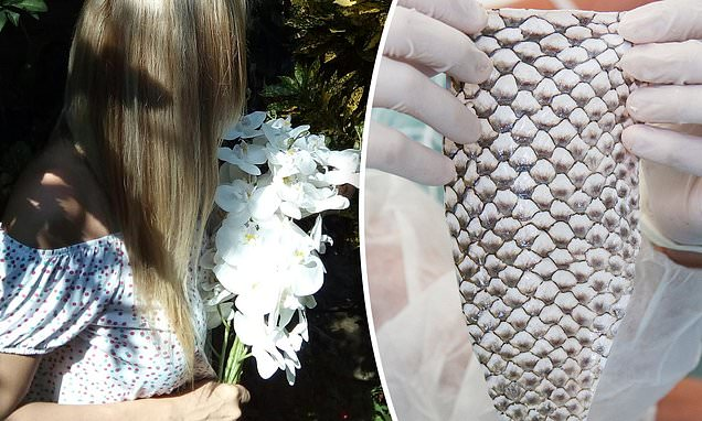 Trans woman is the first to have a vagina made out of FISH SKIN