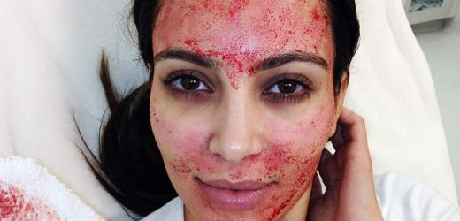 There May Be a Scary Link Between Vampire Facials and HIV