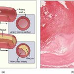 Bladder drug linked to atherosclerosis in mice
