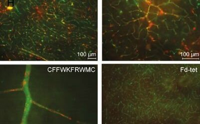 New molecule maps cerebrovascular system
