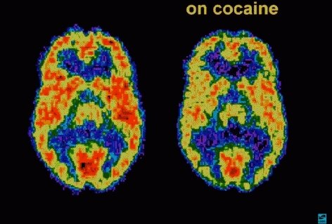 Preventing relapse in recovery from cocaine use disorder