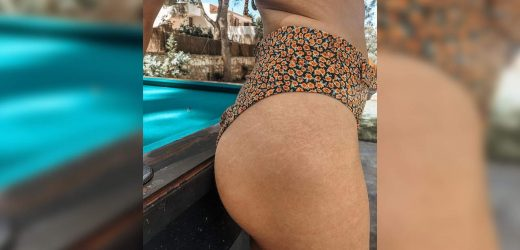 This 30-Year-Old Posted a Photo of Her Butt Stretch Marks to Prove They're a Normal Part of Aging