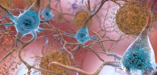 Researchers map protein-gene interactions involved in Alzheimer's disease
