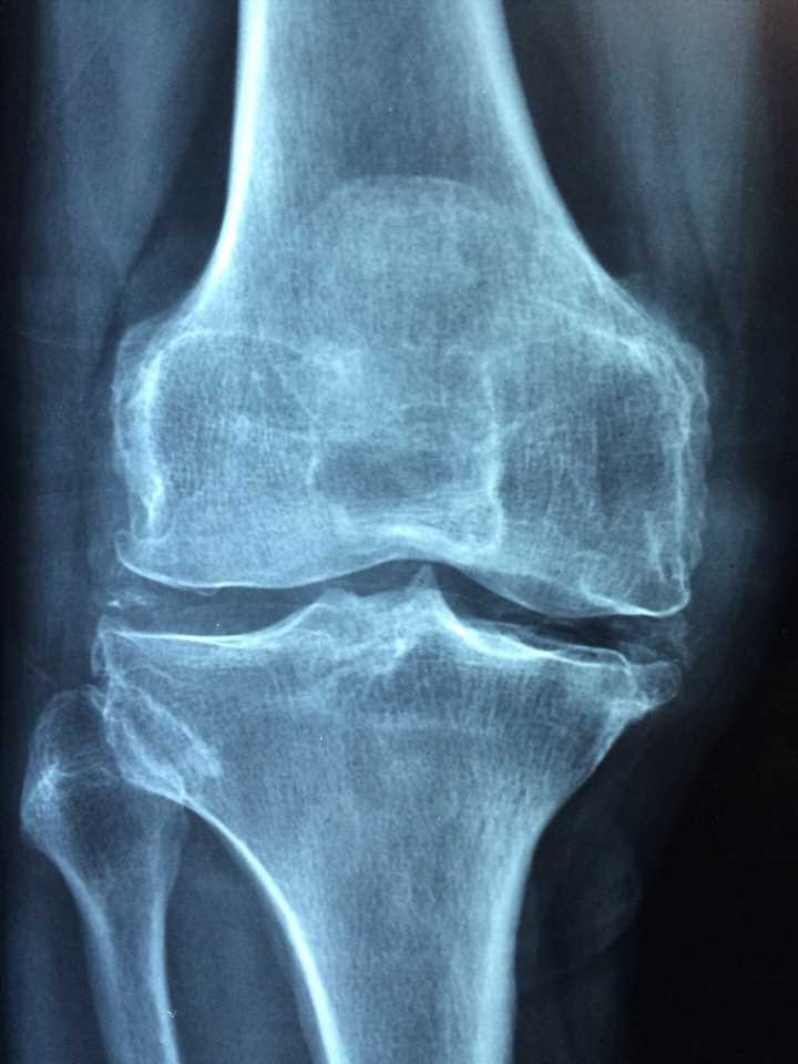 Osteoarthritis linked to higher risk of dying from cardiovascular disease