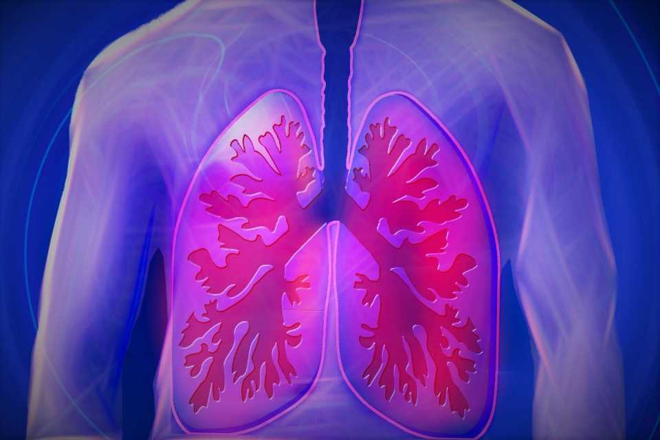 Air pollution can accelerate lung disease as much as a pack a day of cigarettes