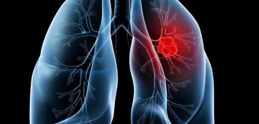 Discovery of distinct lung cancer pathways may lead to more targeted treatments