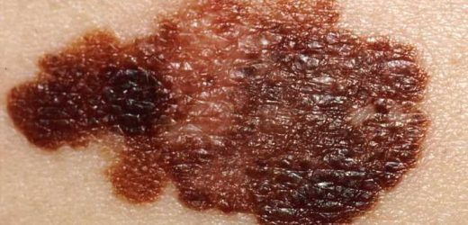 Moles on the body largely influenced by genetics, finds new study