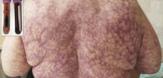 Woman breaks out in blotchy purple rash caused by cold NY weather