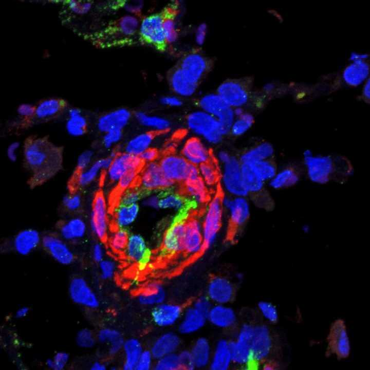 New drug target discovered for the lung disease PAH