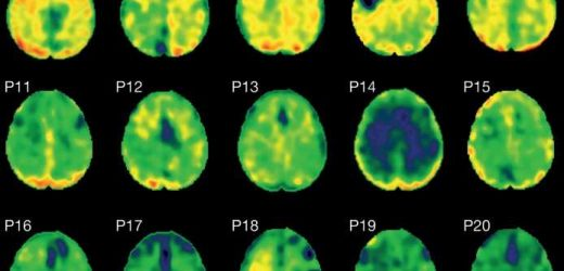 Protein tangles linked with dementia seen in patients after single head injury