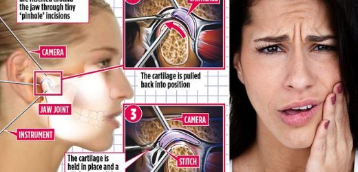 Scar-free way to ease agony of clicking jaw – with an invisible stitch