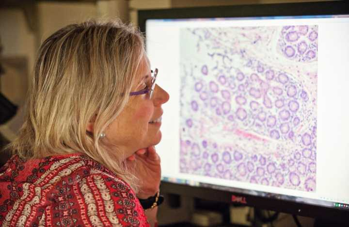 Aggressive breast cancers store large amounts of energy, which enables it to spread: study