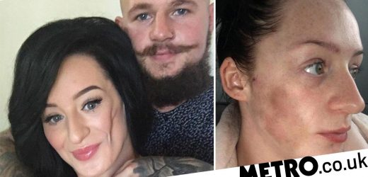 Woman with 'face sinking' condition has stomach fat injected into her cheek