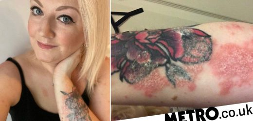 Woman horrified as 'plaque psoriasis' destroys her tattoo