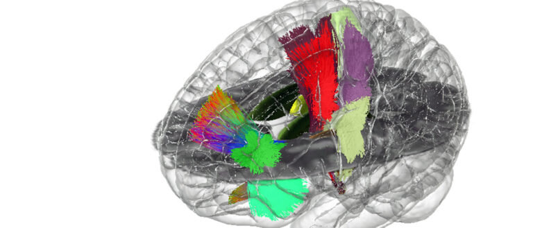 Building the first holographic brain 'atlas'