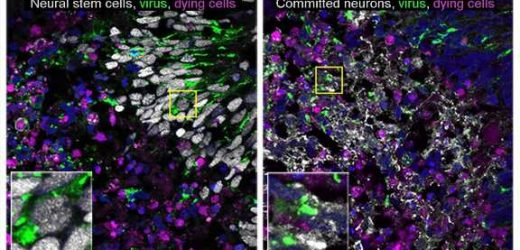 Cerebral organoid model provides clues about how to prevent virus-induced brain cell death