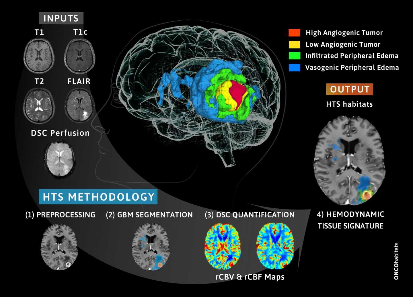 New methodology developed to monitor patients with glioblastoma