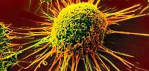 First-in-human trial for new lung cancer immunotherapy