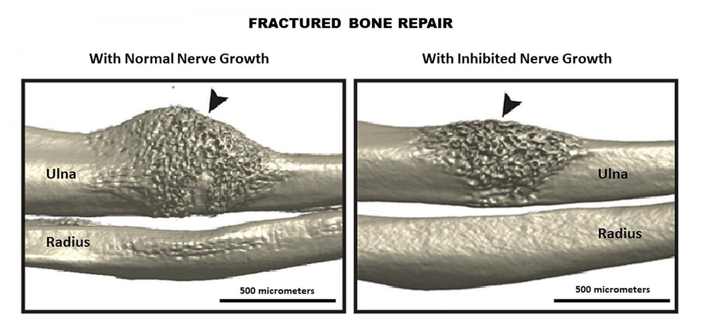 Mouse study shows nerve signaling pathway critical to healing fractures