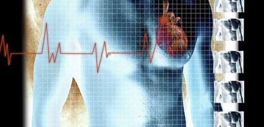 New cardiogenic shock staging system identifies mortality risk
