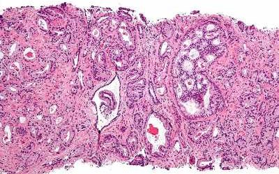 New, non-hormonal target identified for advanced prostate cancer