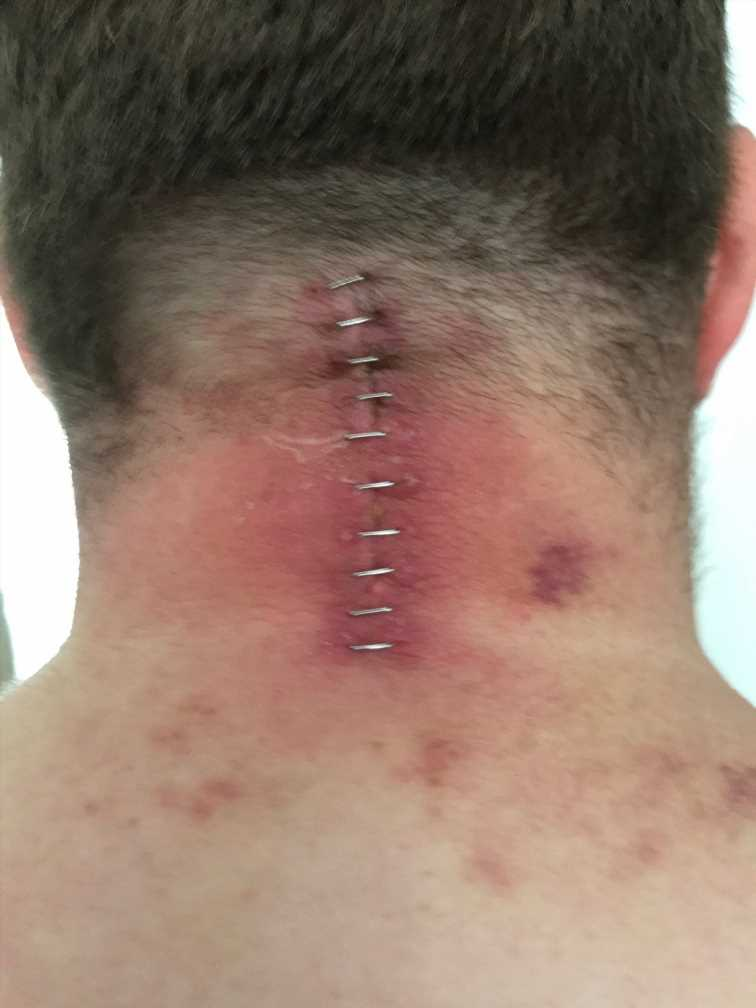 Supermarket fridge door unhinges, lands on man's neck 'like a guillotine' in freak accident