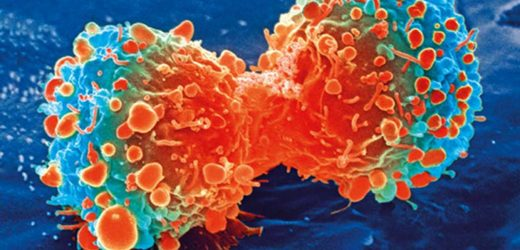Study shows lactate may prompt cancer formation