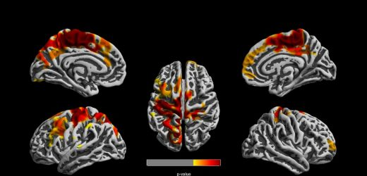High air pollution exposure in one-year-olds linked to structural brain changes at age 12