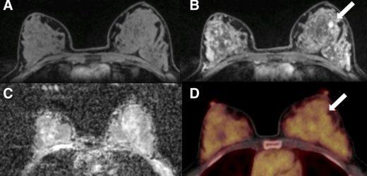 PET/MRI identifies notable breast cancer imaging biomarkers