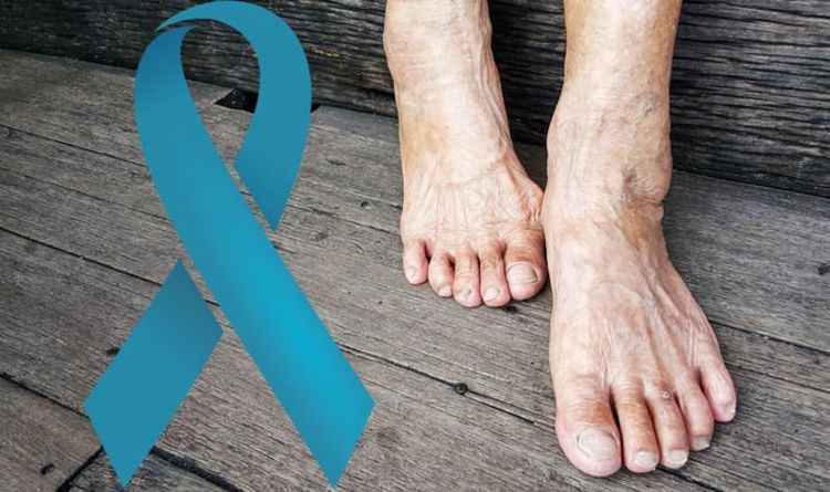 Prostate cancer symptoms: The sign in your feet that could signal the deadly disease