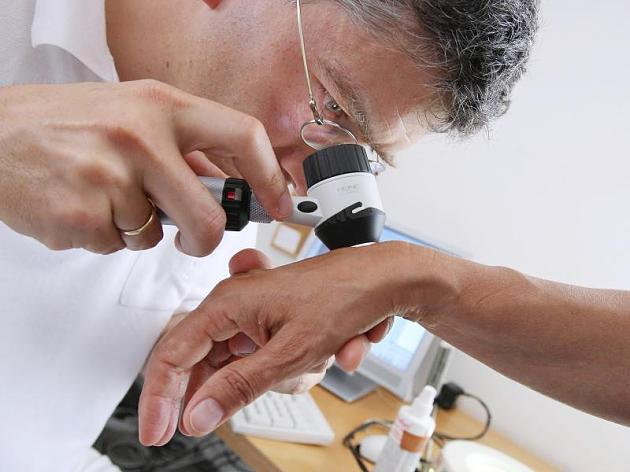 Mole or skin cancer? What makes a good skin doctor treatment