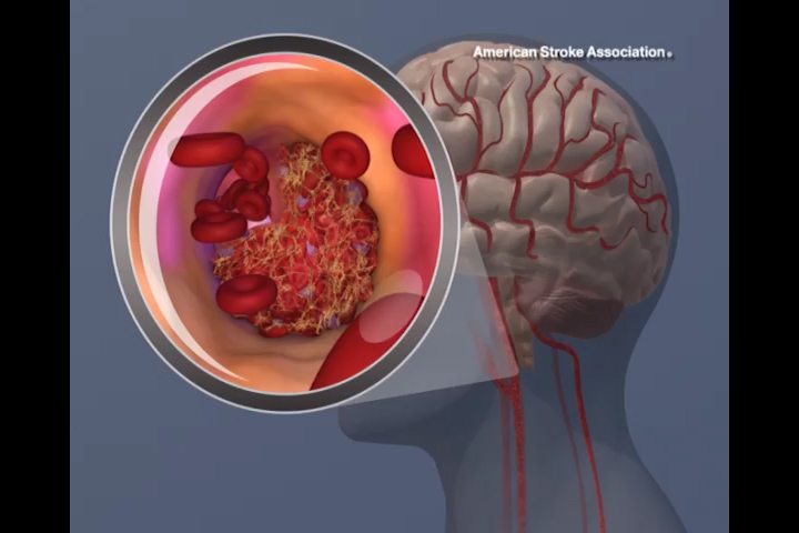 Risk of death from stroke falls by 24%