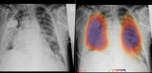 Artificial intelligence enables COVID-19 lung imaging analysis
